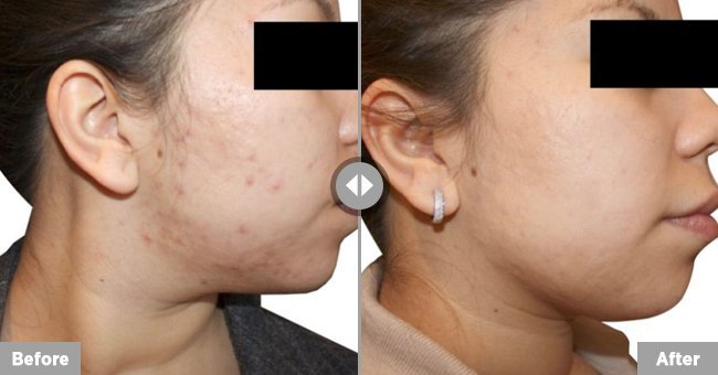 Venus Versa acne treatment