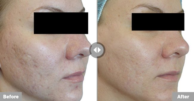Venus Versa resurfacing treatment