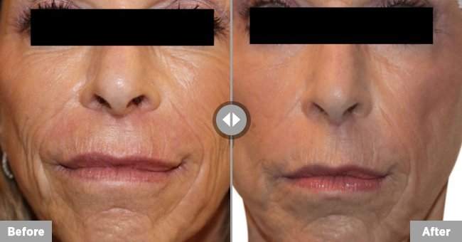 Venus Versa wrinkle treatment