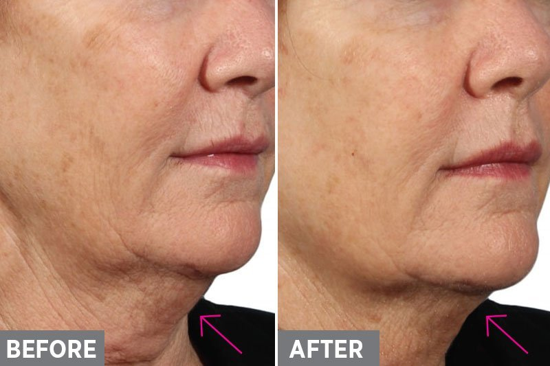 Laser-Skin-Tightening-Before-After1