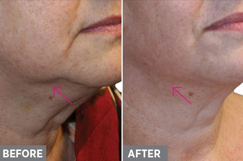 Laser-Skin-Tightening-Before-After2