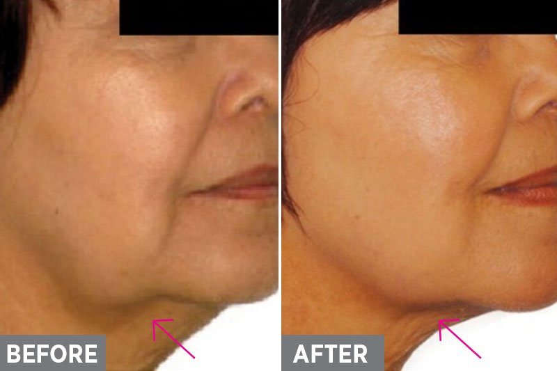 Laser-Skin-Tightening-Before-After3