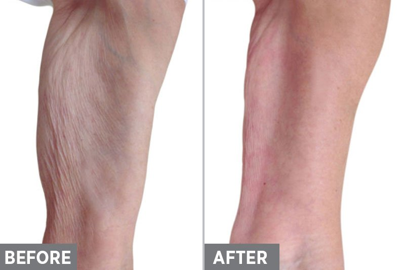 Laser-Skin-Tightening-Before-After4