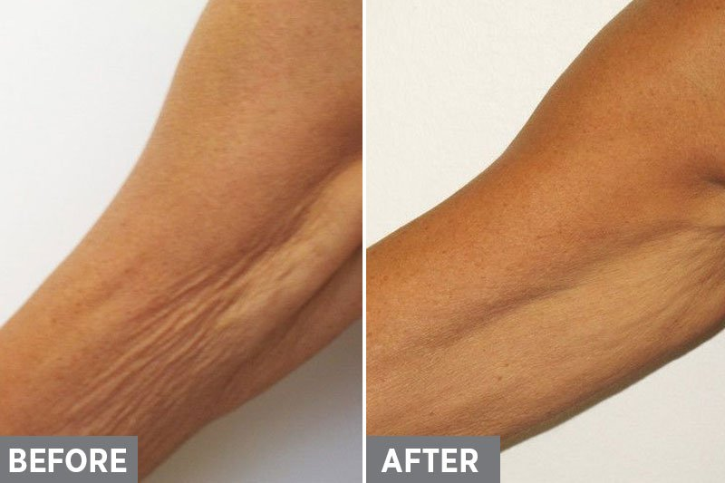 Laser-Skin-Tightening-Before-After5