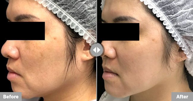 Tribella Austin Texas Before After
